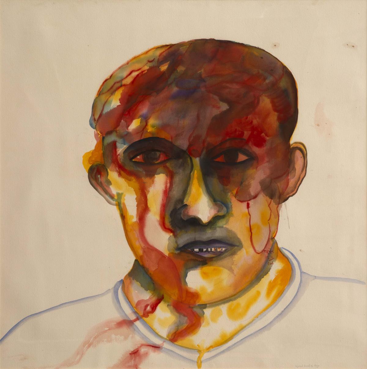 Bhupen Khakhar, Injured Head of Raju, 2001  Courtesy of Estate of Bhupen Khakhar/ National Gallery of Modern Art (NGMA), New Delhi